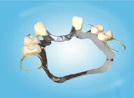 Chrome cobalt sceletal denture