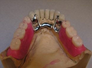 Skeletal dentures on crowns 1